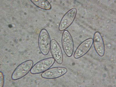 Ascospores X1000 <br width='400' height='300' /> crédits : Photo Ph. Pellicier